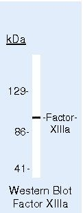 Factor XIII A Antibody (PA5-16423) in Western Blot