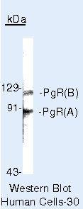 Progesterone Receptor Antibody (PA5-16435) in Western Blot