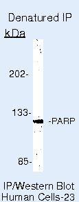 PARP Antibody (PA5-16452) in Immunoprecipitation