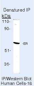 Estrogen Receptor alpha Antibody (PA5-16476) in Immunoprecipitation