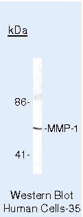 MMP1 Antibody (PA5-16498) in Western Blot