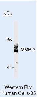 MMP2 Antibody (PA5-16504)
