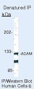 ADAM17 Antibody (PA5-16551) in Immunoprecipitation