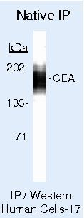 CEA Antibody (PA5-16665) in Immunoprecipitation