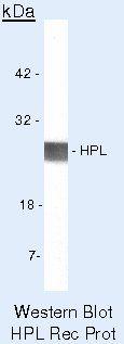 CSH1 Antibody (PA5-16805) in Western Blot