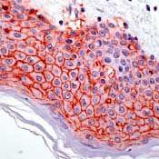 Claudin 1 Antibody (PA5-16833) in Immunohistochemistry