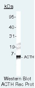 ACTH Antibody (PA5-16837) in Western Blot