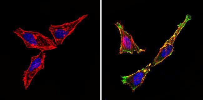 CD105 Antibody (PA5-16895) in Immunofluorescence