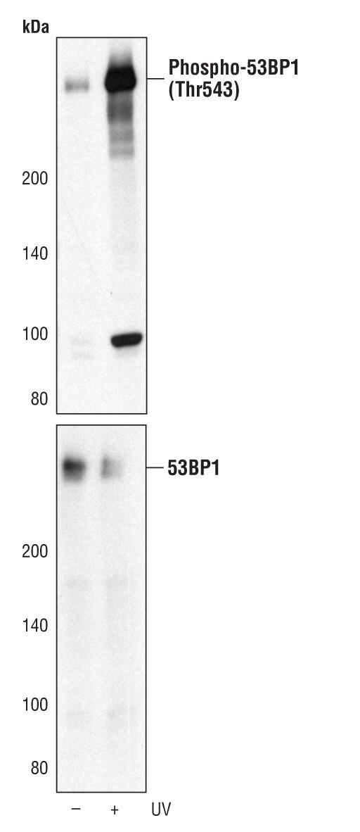 Phospho-53BP1 (Thr543) Antibody (PA5-17000) in Western Blot