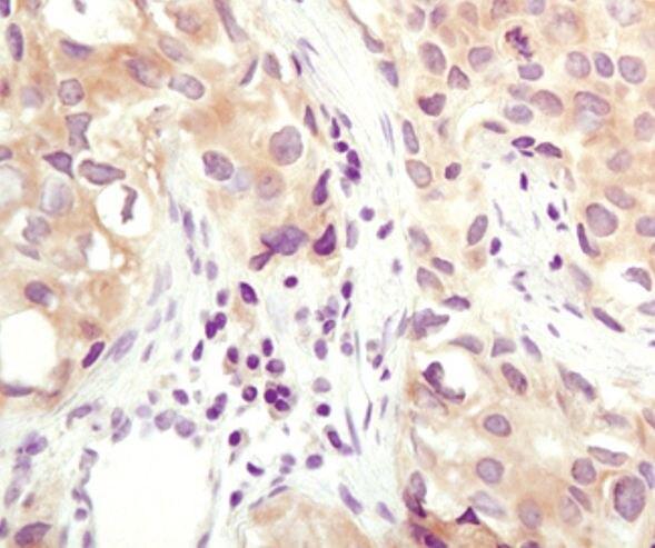 Calcyclin Antibody (PA5-17001)