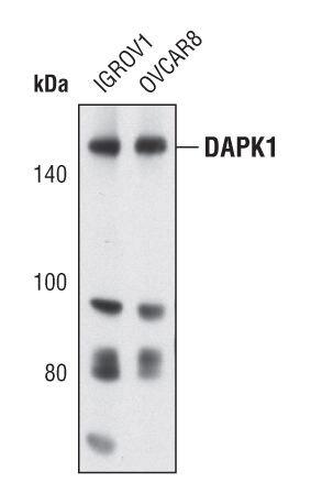 DAPK1 Antibody (PA5-17055)