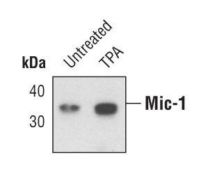 GDF15 Antibody (PA5-17066)