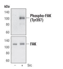 Phospho-FAK (Tyr397) Antibody (PA5-17084) in Western Blot