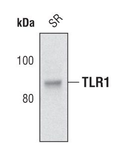 TLR1 Antibody (PA5-17134) in Western Blot