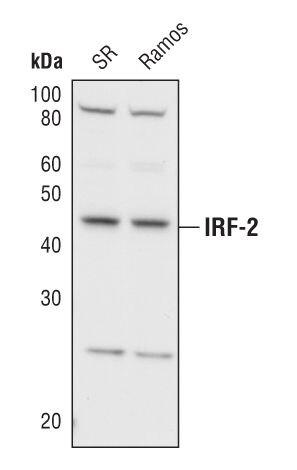 IRF2 Antibody (PA5-17252) in Western Blot