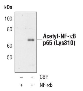 Acetyl-NFkB p65 (Lys310) Antibody (PA5-17264) in Western Blot