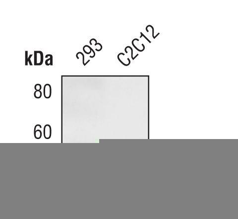 HIP Antibody (PA5-17269) in Western Blot