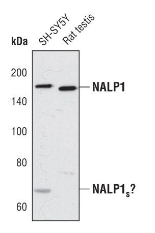 NALP1 Antibody (PA5-17275) in Western Blot