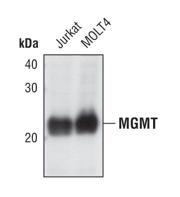 MGMT Antibody (PA5-17278)