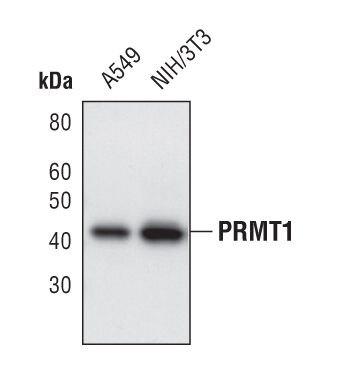 PRMT1 Antibody (PA5-17302) in Western Blot