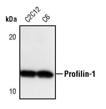 Profilin 1 Antibody (PA5-17444) in Western Blot