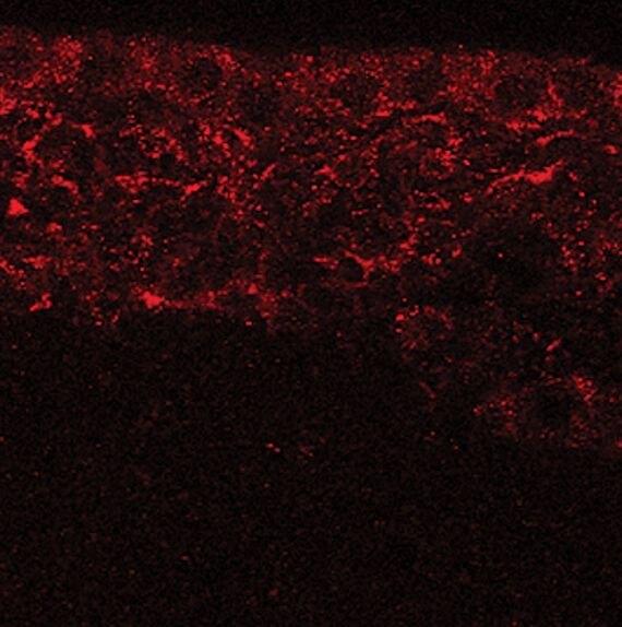 MSI1 Antibody (PA5-17464) in Immunofluorescence