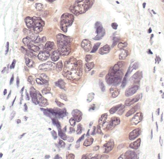 NEDD8 Antibody (PA5-17476) in Immunohistochemistry
