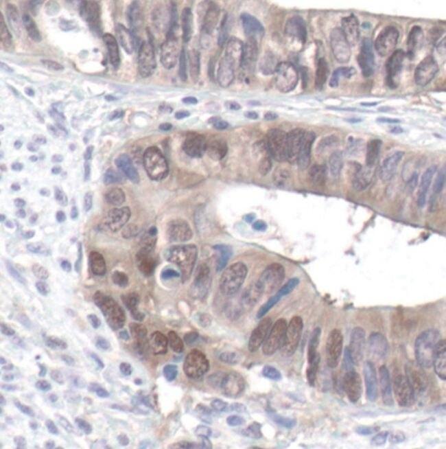 Phospho-YAP1 (Ser127) Antibody (PA5-17481) in Immunohistochemistry