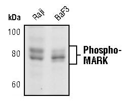 Phospho-MARK1/MARK2/MARK3 (Thr215, Thr208, Thr234) Antibody (PA5-17495) in Western Blot