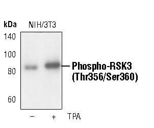 Phospho-RSK3 (Thr356, Ser360) Antibody (PA5-17554)