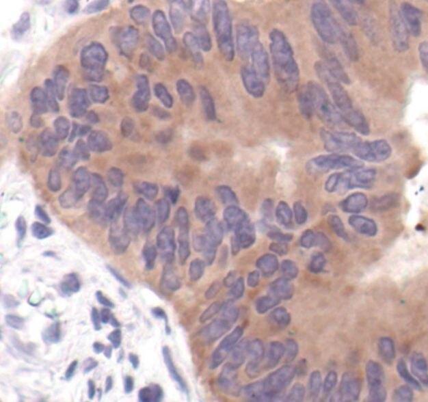 Acetyl-CoA Carboxylase Antibody (PA5-17564) in Immunohistochemistry