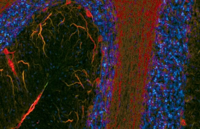 Phospho-MAP2 (Ser136) Antibody (PA5-17645) in Immunofluorescence