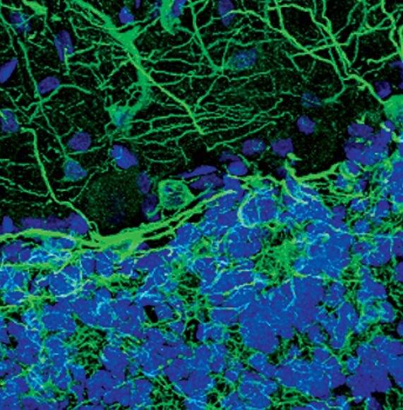 MAP2 Antibody (PA5-17646) in Immunofluorescence