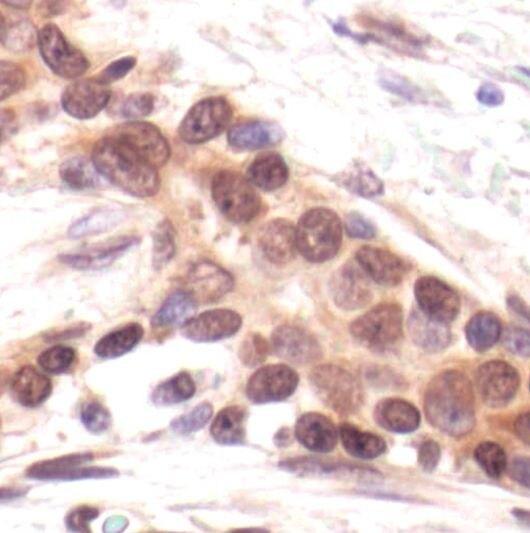PKMYT1 Antibody (PA5-17665)