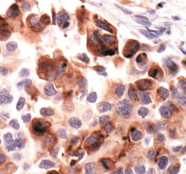 IGFBP2 Antibody (PA5-17699)
