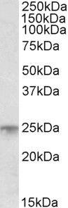 MSC Antibody (PA5-17944) in Western Blot