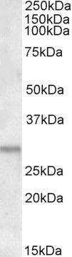 ATF5 Antibody (PA5-17988)