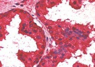 CREB3L4 Antibody (PA5-18028)