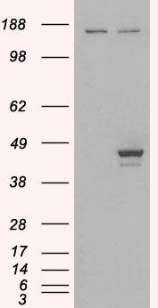 ELF3 Antibody (PA5-18065) in Western Blot
