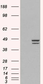 IRF2 Antibody (PA5-18083) in Western Blot