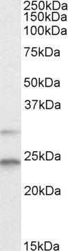 MAD2 Antibody (PA5-18090)