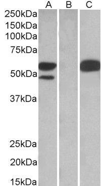 TRIM21 Antibody (PA5-18147) in Western Blot