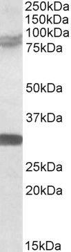TRIM2 Antibody (PA5-18152) in Western Blot