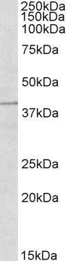 TRIM5 alpha/gamma/delta Antibody (PA5-18156) in Western Blot