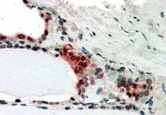 TRIP15 Antibody (PA5-18161) in Immunohistochemistry