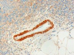 USP20 Antibody (PA5-18167)