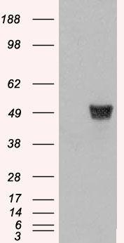 Coronin 1A Antibody (PA5-18186) in Western Blot