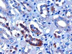 FBXW2 Antibody (PA5-18189)