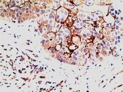 EPS8 Antibody (PA5-18196)