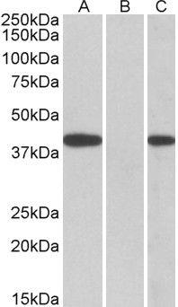FANCF Antibody (PA5-18202) in Western Blot